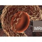 MRC AMR grants May 24